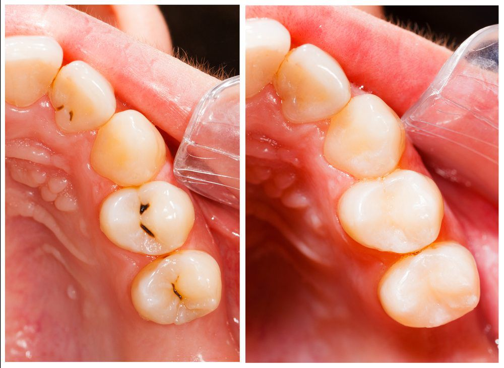 Composite Tooth-Colored Fillings