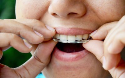 Care Following Orthodontics – Retainers