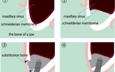 Ridge and Sinus Augmentations