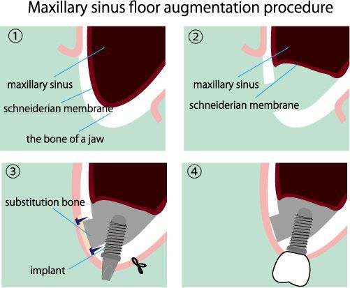sinus augmentation for dental implants